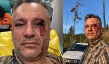 """VIDEO. Așa arată lupta cu mafia lemnului protejată de autorități. Activistul Tiberiu Boșutar, bătut crunt și dezbrăcat în pielea goală într-o pădure din Suceava: """"Nu e vorba de un caz izolat. E vorba de un sistem care ne pune piciorul pe cap"""" / El a părăsit spitalul la care fusese dus de urgență după ce un """"angajat al statului"""" l-a sunat și l-a amenințat pentru că filmase în salvare"""
